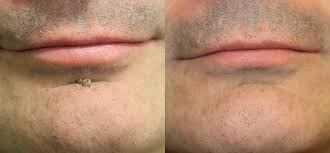 Remove Skin Tags Moles04