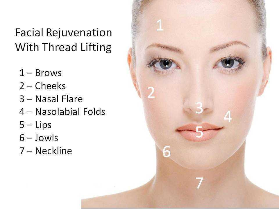 Thread Face Neck Lift 02