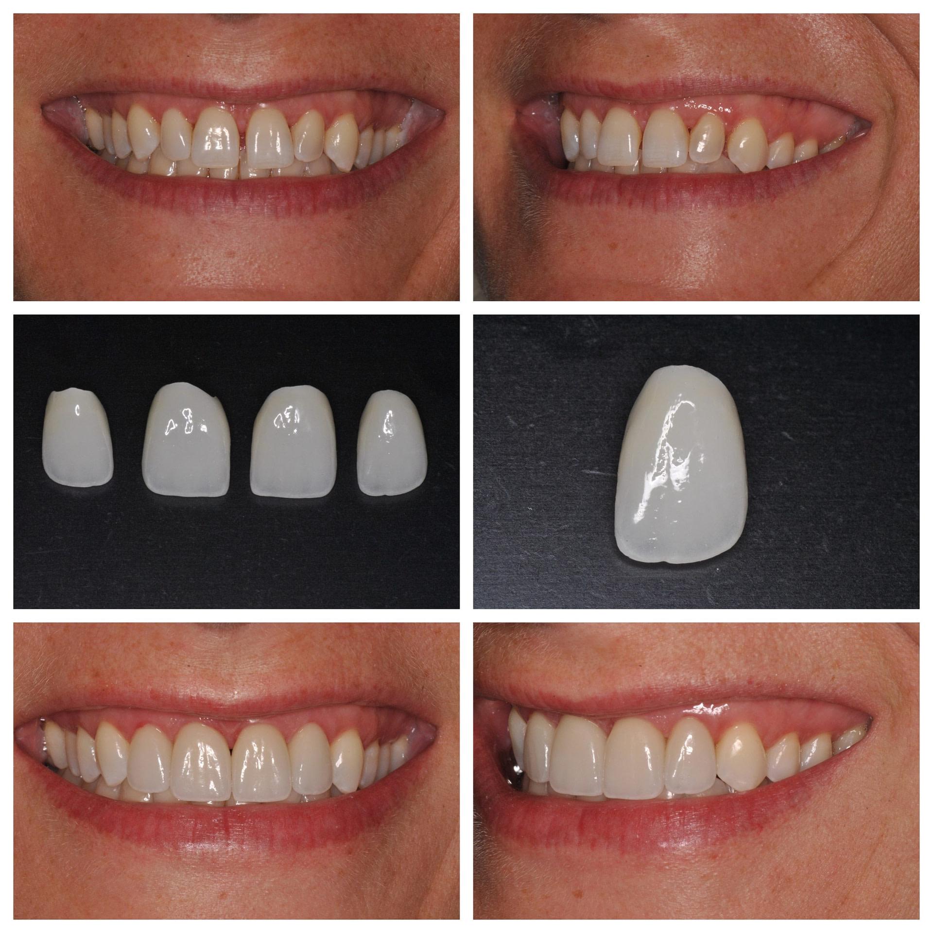 dental-veneers01