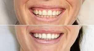 fix gummy smile02