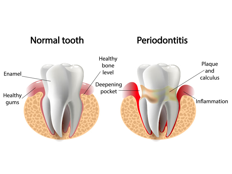 periodontal-treatment-in-dundrum-dublin