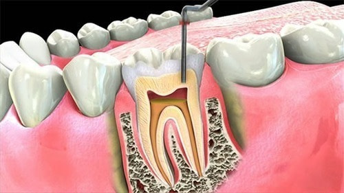 root-canal-treatment-rct-500×500