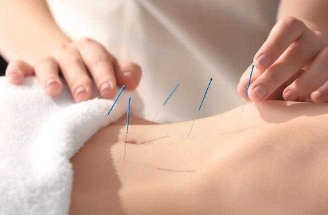 Acupuncture Electropathy002