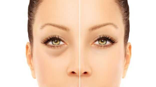 Dark Eye Circles Treatments Cause and Remedies 1