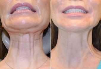 Botox Wrinkles Neck01