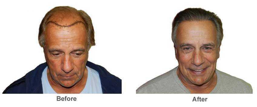 Hair Transplant02
