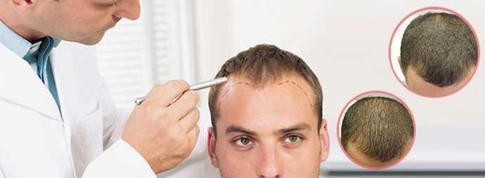 Mesotherapy Hair enhancer02