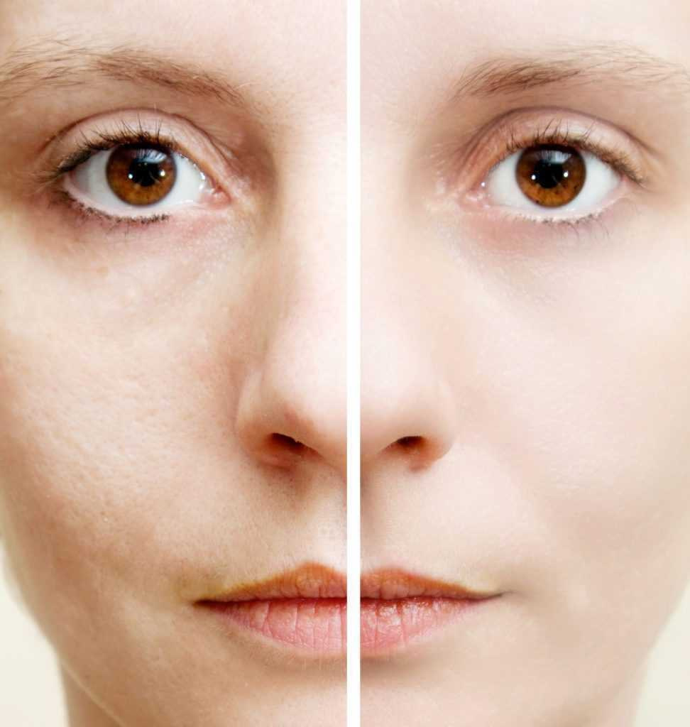 Mesotherapy Shine face and Whitening02