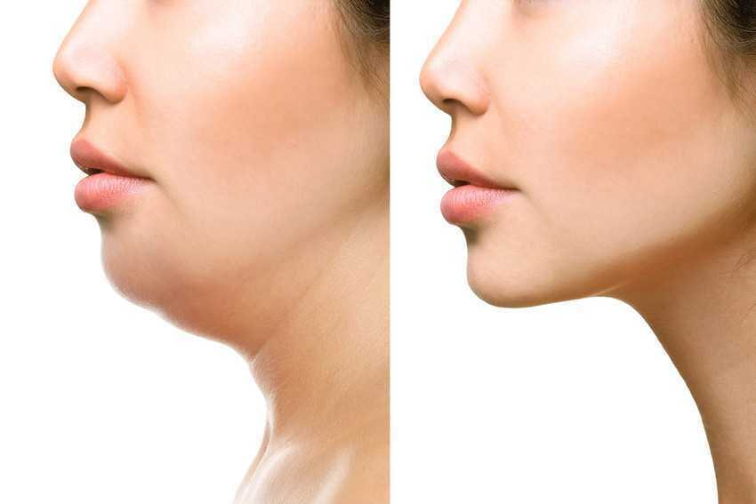 Part of face, woman with the double and perfect chin isolated on