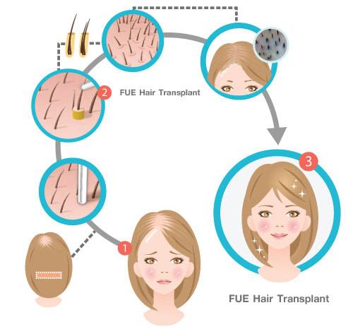 hair-transplant-FUE05
