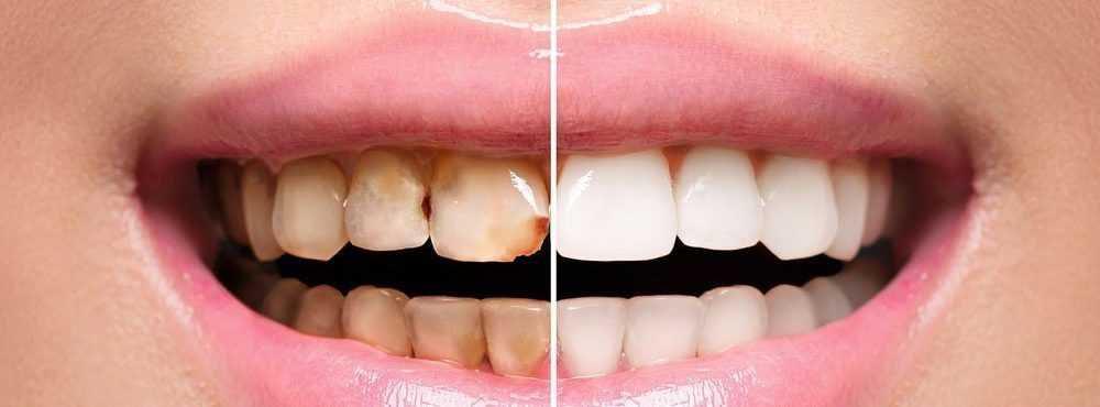 teeth-restoration