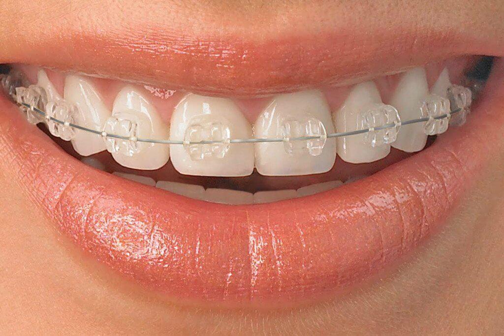 ceramic-braces-0