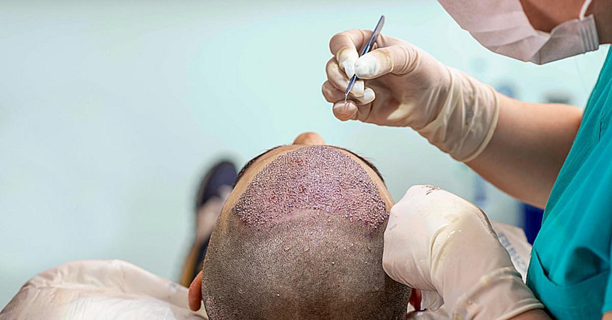 Hair-transplant-surgery-1200×628–concentrate