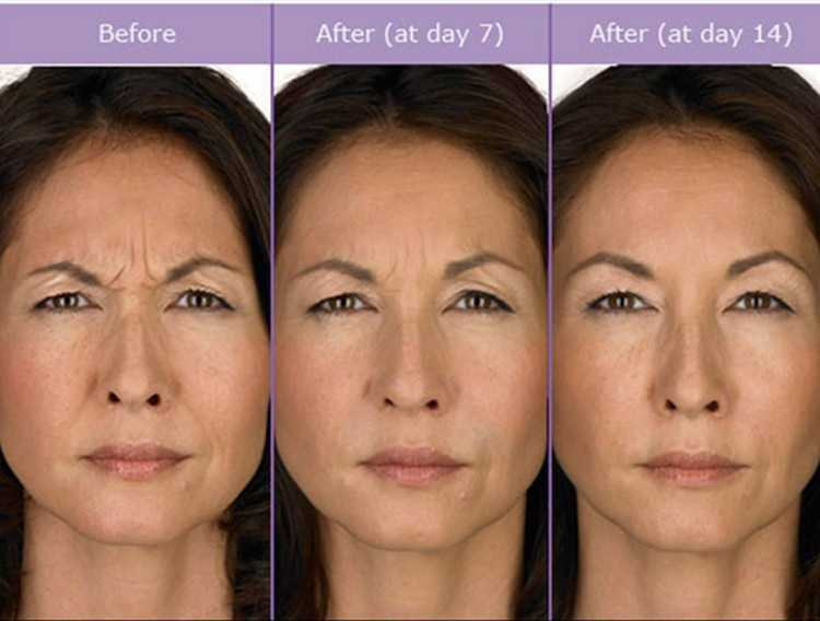 Botox Wrinkles forehead and lips01