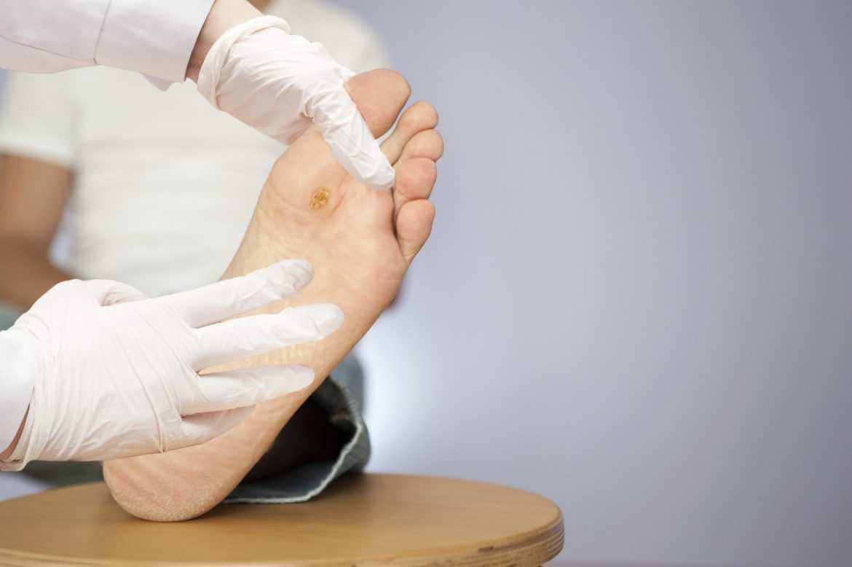 Diabetic Foot Cure002