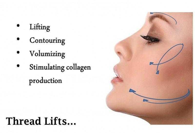 Nose Thread Lift03 1