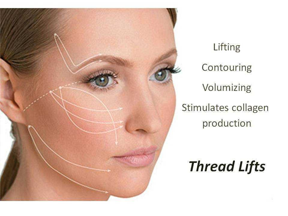 Thread Face Neck Lift 01