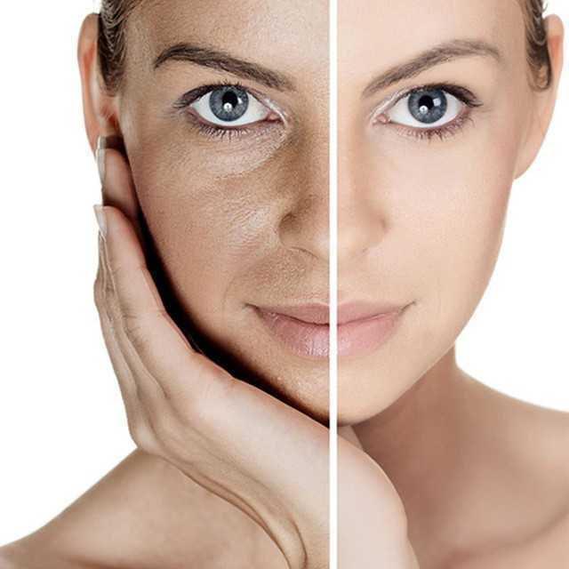 IV Whitening Shining Skin Glutathione01