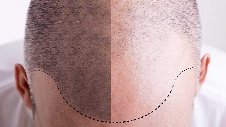 Mesotherapy Hair enhancer04