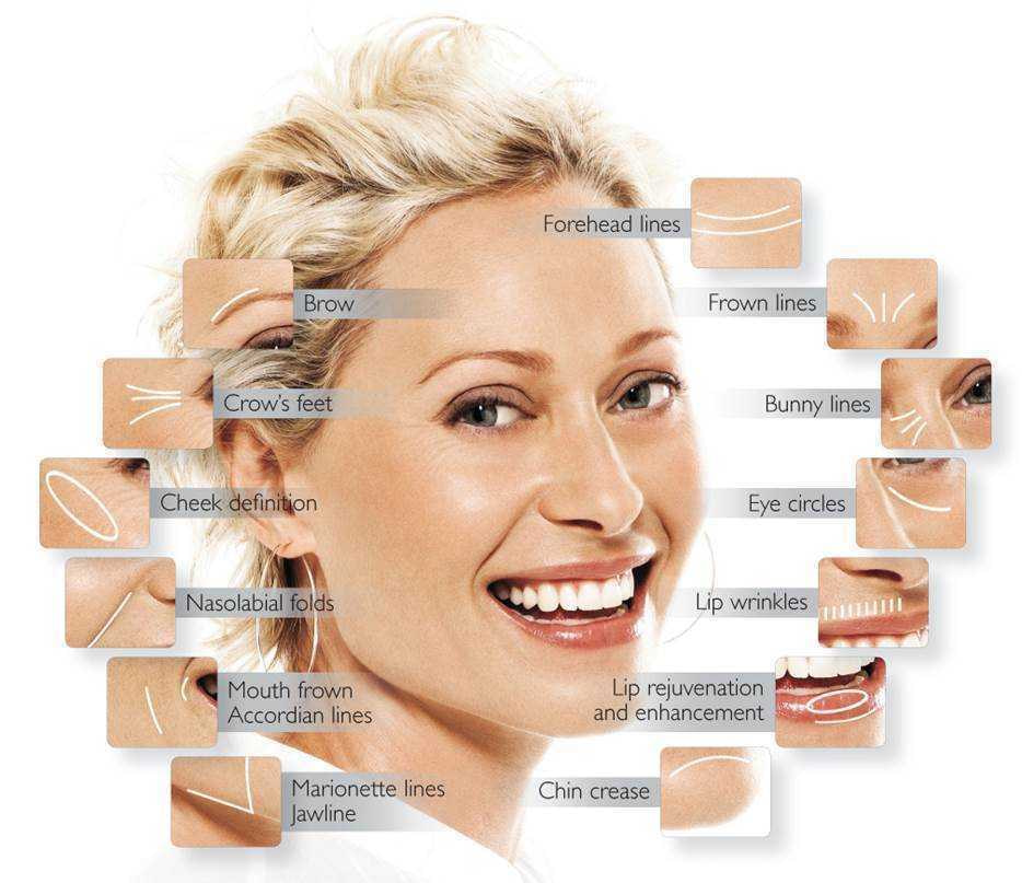 Mesotherapy Wrinkles Youth01