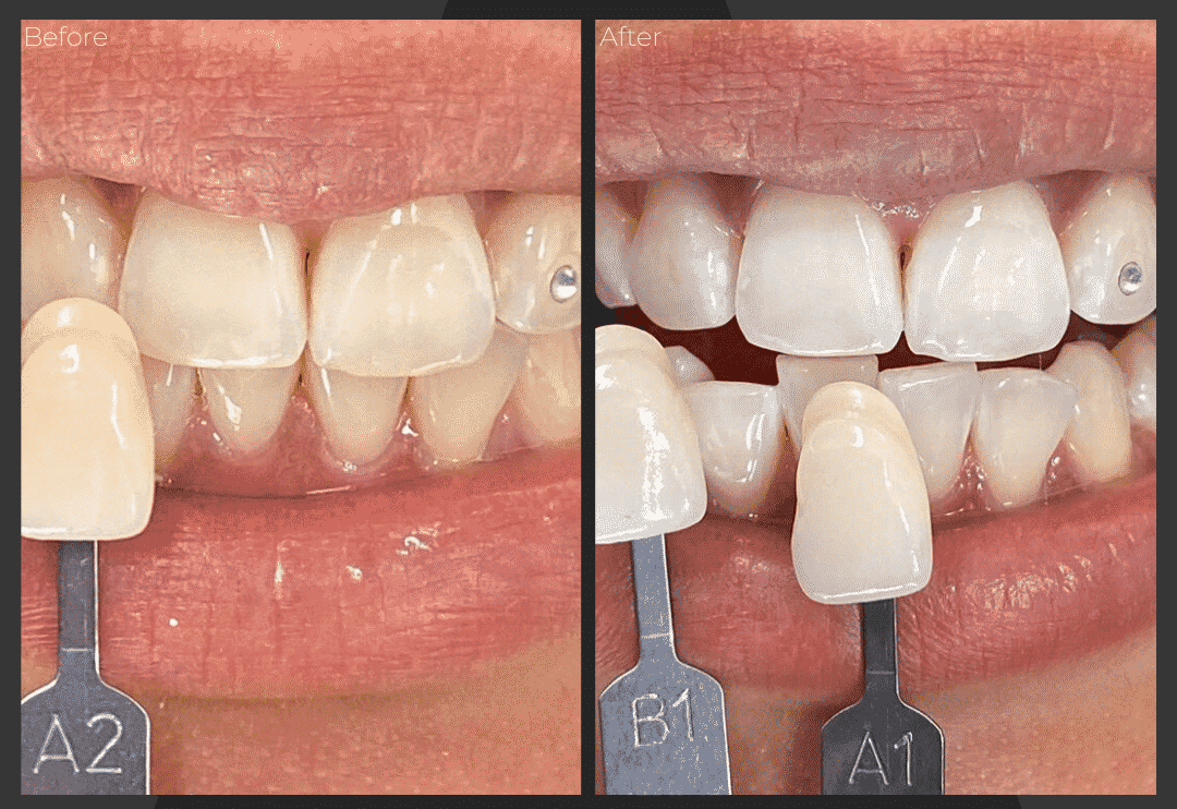 whitening-bleaching-teeth