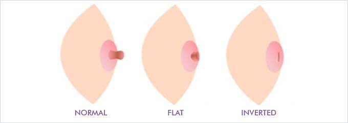 Inverted-nipple