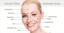 Photo of Dermal Filler & Botox (Courses)