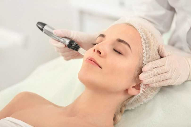 Fixing Skin Problems microneedling