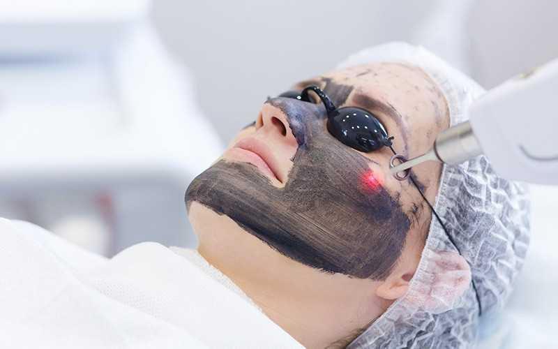 Laser Carbon Peeling002