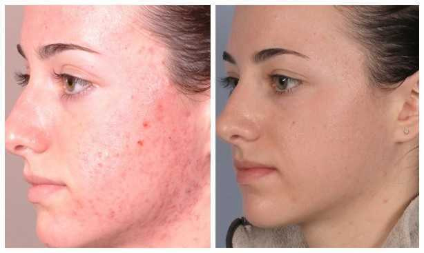 acne treatment mesotherapy