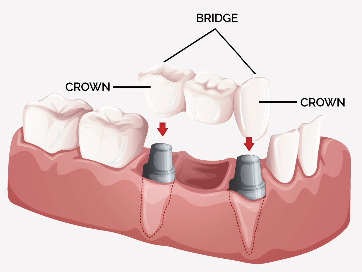 dental-crowns-bridges-3