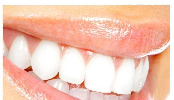 fix gummy smile03