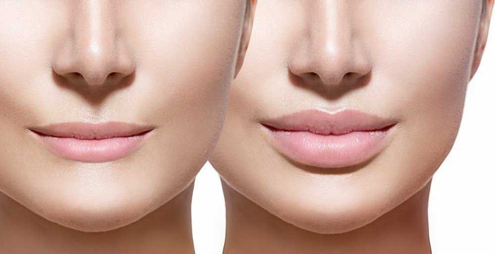 lips fillers