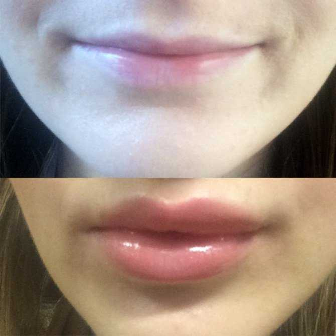 lips fillers002