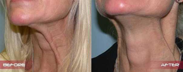 Botox Wrinkles Neck02