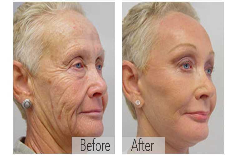 Botox Wrinkles Neck03