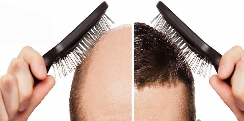 Hair Transplant05