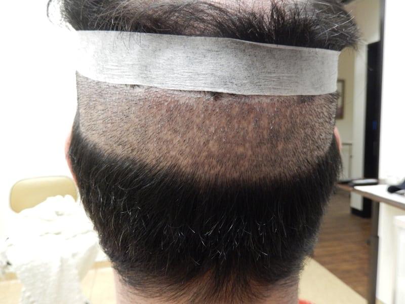 hair-transplant-FUE04