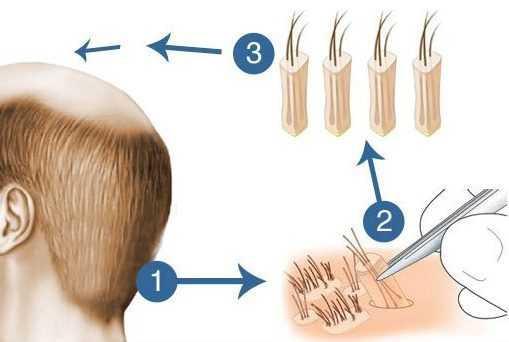 hair_transplant_follicular_unit_extraction-_fue_technique_1