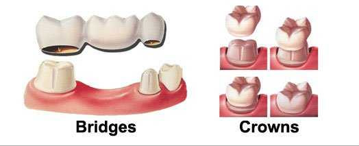 Dental-Crowns-and-Bridges-St-Lucie-Center-for-Cosmetic-Dentistry