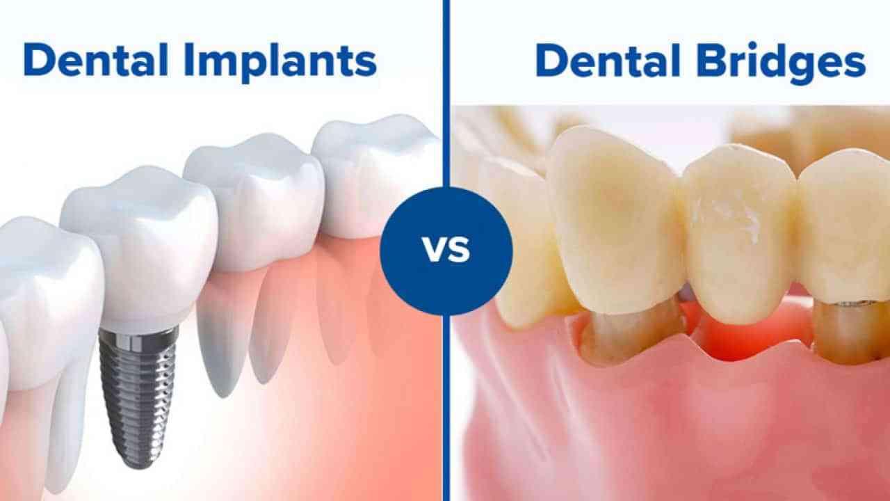 Inner-Page-Dental-Bridges-vs-Implants